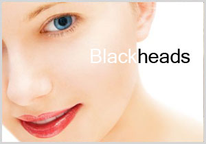 blackheadtemp